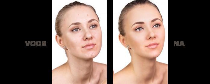 Propfun photobooth - huidverbetering